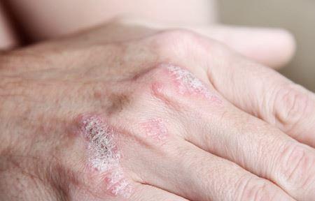 EUCERIN-AS-indication-psoriasis-02