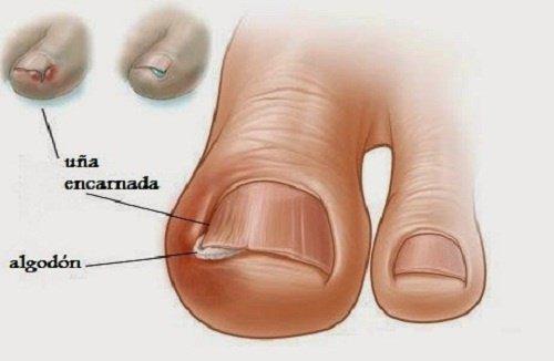 Tratamiento-de-uñas-encarnadas-500x326